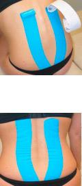 aplicacion muscular kinesiotape lumbares