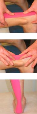aplicacion ligamentosa kinesiotape tendon de aquiles