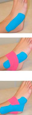 aplicacion ligamentosa kinesiotape pie
