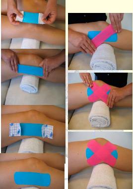 aplicacion ligamentosa kinesiotape rodilla